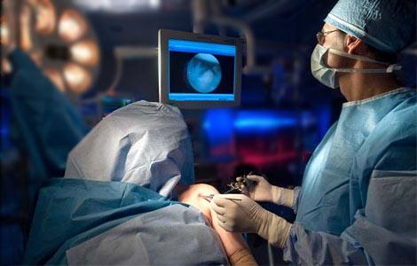 artroscopie de umar