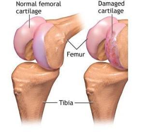 leziune de cartilaj