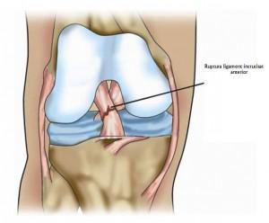 ruptura ligamentului incrucisat anterior