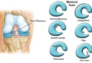 meniscus-tears-illustration
